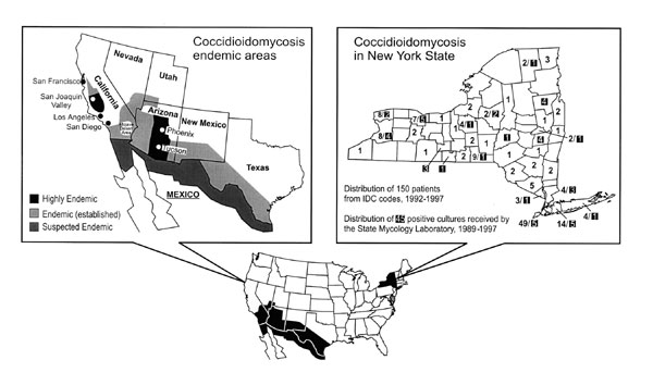 Coccidioidomycosis in New York, 1989–1997. The figure on the left highlights coccidioidomycosis-endemic areas in the United States (adapted from Kirkland TN, Fierer [2]). The figure on the right depicts New York countywide distribution of 150 out of 161 patients in the discharge records (1992–1997); the highlighted numbers show counties from which 45 of the 49 Coccidioides immitis cultures were referred to the state mycology laboratory (1989–1997).