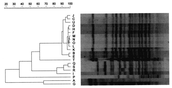 Results of pulsed-field gel electrophoresis (PFGE) of clinical and environmental isolates of Burkholderia pseudomallei from western Australia. Molecular typing was performed by electrophoresis of twice-digested 18h XbaI digests of chromosomal DNA from each isolate with a pulse time and ramp of 5.5 to 52 sec from 20h at 200V. Lanes correspond to the following isolates: A,G initial and recurrent infection separated by >12 months in epidemiologically unrelated case in outbreak community; B,C,D,E