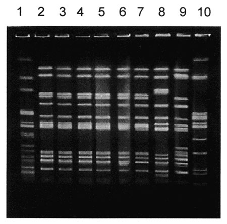 Pulse-field gel electrophoresis patterns of Xba I-digested DNA of Salmonella Typhimurium strains. Lane 1, Xba I-digested S. Newport control strain am01144; lanes 2 through 4, S. Typhimurium strains isolated during the first, second, and third outbreaks in Georgia, respectively; lane 5, strain 00354 (Washington isolate); lane 6, strain 01587 (Washington isolate); lane 7, 9294-99 (Maryland isolate); lanes 8, 9, and 10, genetically unrelated control S. Typhimurium strains isolated in Maryland, Wash