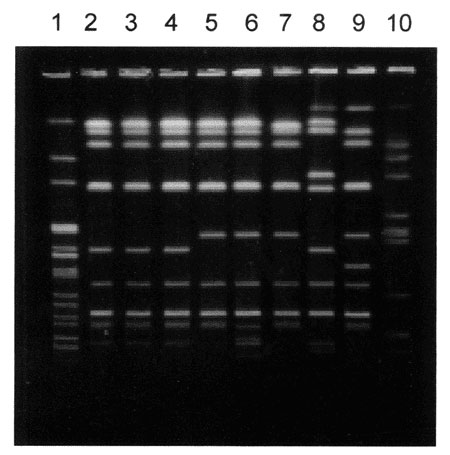 Pulse-field gel electrophoresis patterns of Avr II-digested DNA of Salmonella Typhimurium strains. Lane 1, S. Newport control strain am01144 (Xba I-digest); lanes 2 through 4, S. Typhimurium strains isolated during the first, second, and third outbreaks in Georgia, respectively; lane 5, strain 00354 (Washington isolate); lane 6, strain 01587 (Washington isolate); lane 7, 9294-99 (Maryland isolate); lanes 8, 9, and 10, genetically unrelated control S. Typhimurium strains isolated in Maryland, Was