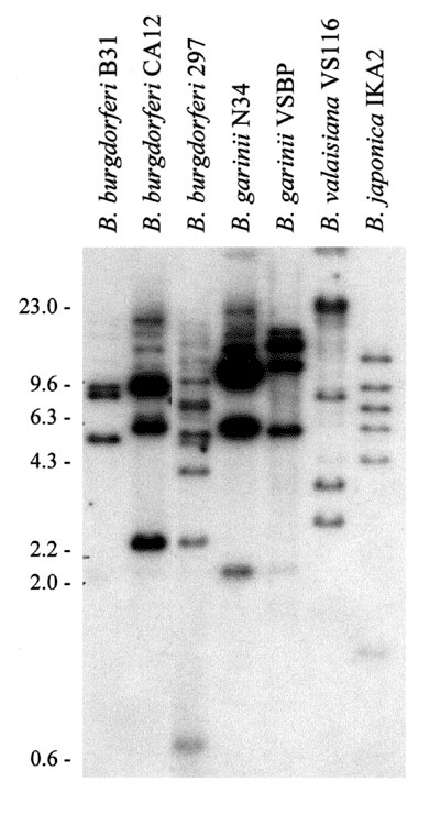 Restriction fragment length polymorphism pattern analysis of the rep or bdr genes of the Lyme disease spirochetes. Total DNA, isolated from Borrelia cultures, was digested with Xba1, fractionated by electrophoresis, and transferred onto membranes for hybridization. Hybridization was performed by the bdrAB-R1 oligonucleotide (46). The species and isolates analyzed are indicated above each lane. MW markers in kb are indicated.