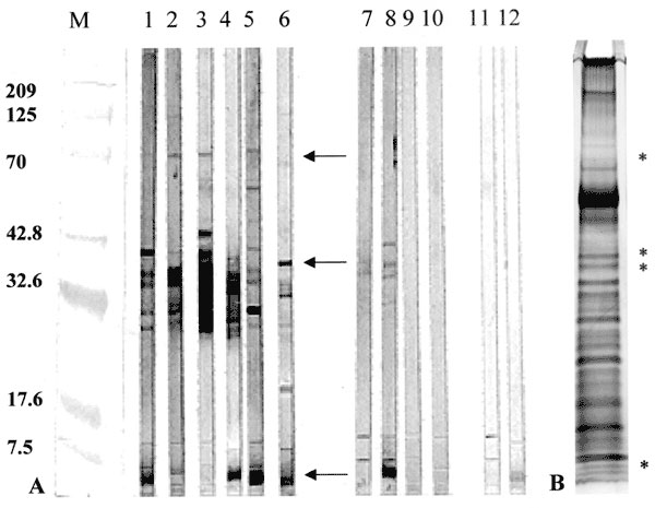 Western blot reactivity to and Silver stain analysis of Mycobacterium ulcerans culture filtrates (MUCF). A) Representative antibody responses to MUCF. M; molecular weight markers with annotations corresponding to molecular weight on the left; lanes 1-6, representative BU patient sera with reactivity to MUCF; lanes 7-10, representative antibody reactivity in healthy persons from the disease-endemic area; lanes 11-12, serologic reactivities to MUCF of two representative tuberculosis (TB) patients.