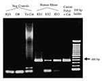 Thumbnail of Agarose gel electrophoresis of Rhinosporidium-specific PCR products. The specific amplification product is 377 bp. No amplification product is seen in the negative control samples consisting of water (reagent-only control), digestion buffer (DB), or lymph node tissue control (Tis Cnt). The human rhinosporidiosis samples (RS1-3) and the original canine nasal polyp show visible amplification products.