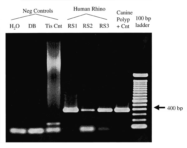 Agarose gel electrophoresis of Rhinosporidium-specific PCR products. The specific amplification product is 377 bp. No amplification product is seen in the negative control samples consisting of water (reagent-only control), digestion buffer (DB), or lymph node tissue control (Tis Cnt). The human rhinosporidiosis samples (RS1-3) and the original canine nasal polyp show visible amplification products.