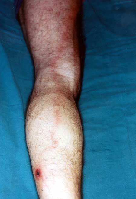 Lymphangitis expanding from the inoculation eschar on the left leg to an enlarged, painful lymph node on the left groin of a patient with Rickettsia mongolotimonae infection.