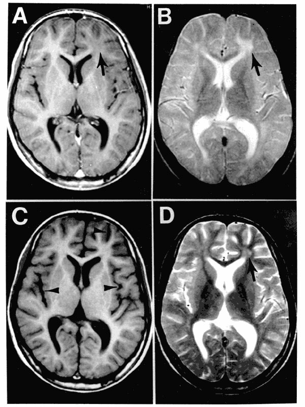 MRI scans of the brain at the time of presentation in the neurology clinic (A and B) and 3 months later (C and D). Panels A and C are T1-weighted images; B and D are T2-weighted images. The initial MRI scan (A and B) reveals a focal abnormality in the subcortical white matter of the left frontal lobe, consisting of a hypointense signal on the T1-weighted image (arrow in A) and a hyperintense signal on the T2-weighted image (arrow in B). In the followup scan, the focal abnormality in the left fro