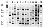 Thumbnail of Random amplified polymorphic DNA fingerprinting (RAPD) types generated by arbitrarily primed PCR. Lanes 5-8 show results for the four index strains of the atypical Chryseobacterium meningosepticum, 96, 97-1, 97-2, and 97-3, respectively; lanes 1-4, four clinical isolates of C. meningosepticum from Canada; lanes 9-10, two clinical isolates of B. cepacia; lane 11, P. aeruginosa strain P1; and lane 12, clinical isolate of K. pneumoniae. Lane M shows the 1-kb DNA ladder.