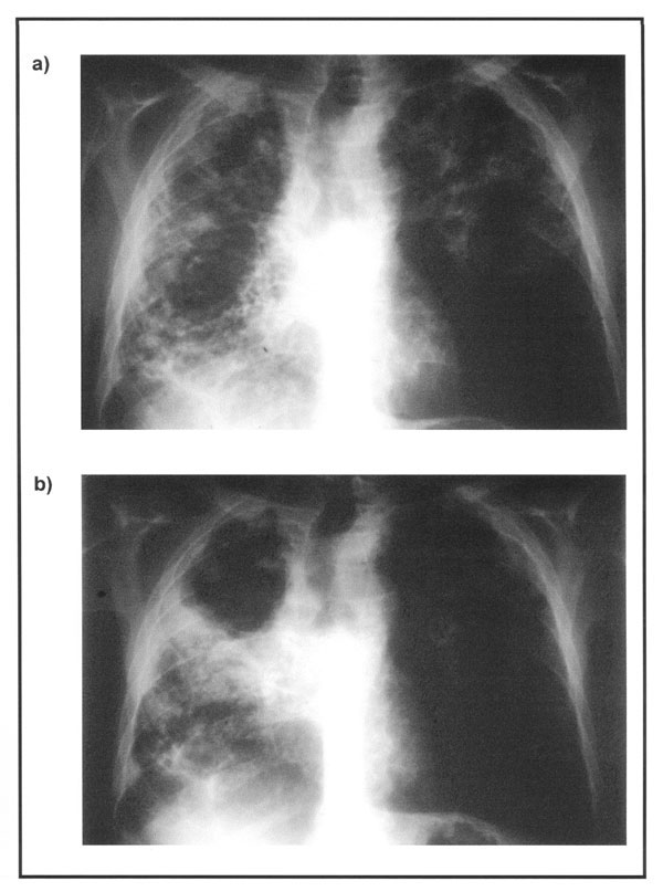 X-rays of the chest of a 58-year-old patient obtained in February 1998 (a) and April 1999 (b).
