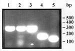 Thumbnail of Gel agarose electrophoresis of the polymerase chain reaction amplification products of Trichinella sp. larvae. Lines 1 and 2, larvae in wild boar meat from Camargue, France; line 3, larva from the reference strain for T. pseudospiralis; line 4, larva from the reference strain for T. spiralis; and line 5, larva from the reference strain for T. britovi. Molecular weight markers: 50 base pairs DNA ladder (Pharmacia).