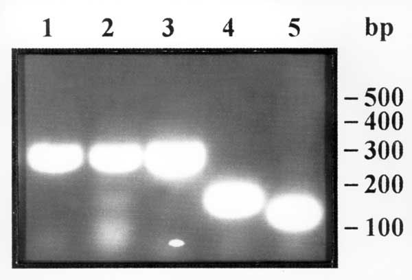 Gel agarose electrophoresis of the polymerase chain reaction amplification products of Trichinella sp. larvae. Lines 1 and 2, larvae in wild boar meat from Camargue, France; line 3, larva from the reference strain for T. pseudospiralis; line 4, larva from the reference strain for T. spiralis; and line 5, larva from the reference strain for T. britovi. Molecular weight markers: 50 base pairs DNA ladder (Pharmacia).