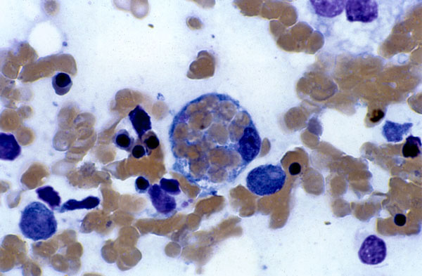 Hemophagocytosis in the bone marrow of an 18-year-old woman with Epstein-Barr virus (EBV)-associated hemophagocytic lymphohistiocytosis. The patient visited her physician in September 1997 with pharyngitis and an elevated heterophile agglutinin titer. She was diagnosed with infectious mononucleosis, and her symptoms resolved in 2 weeks. Approximately 2 months later, she had persistent, spiking fevers and became jaundiced; her immunoglobulin (Ig) M to EBV capsid antigen was positive; and EBV caps