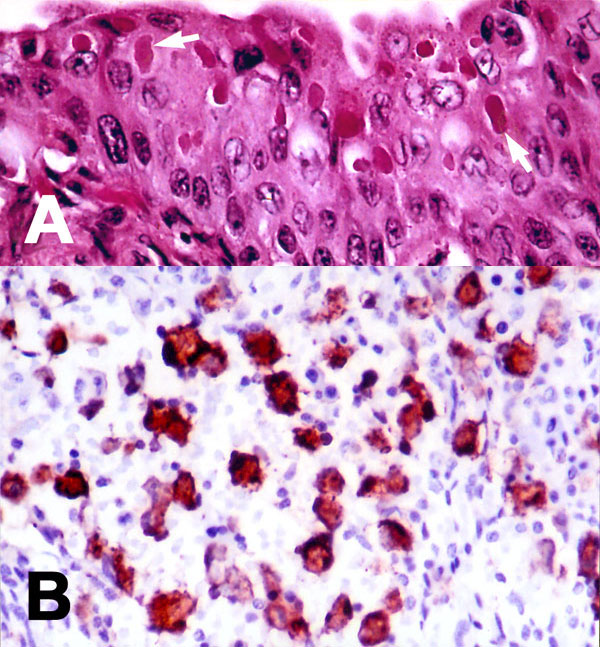 Tissue lesions from a Caspian seal with distemper. (A) Multiple intracytoplasmic, acidophilic viral inclusions in transitional epithelium of urinary bladder (arrows). Hematoxylin and eosin. (B) Immunohistochemical labeling of morbilliviral antigen in lymphoid cells in a lymph node. Avidin-biotin-peroxidase technique with hematoxylin counterstain.