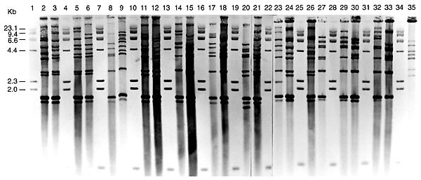 BstEII rRNA gene profiles of nontoxigenic Corynebacterium diphtheriae from isolates submitted to the Public Health Laboratory Service's Streptococcus and Diphtheria Reference Unit from U.K. residents,* 1995. Lanes 1, 4, 7, 10, 13, 16, 19, 22, 25, 28, 31, and 34 contain lambda HindIII digests as size standard (sizes indicated on left). The remaining tracks show ribotypes A to W: lane 2, 95/13 (A); lane 3, 95/281 (B); lane 5, 95/384 (C); lane 6, 95/358 (D); lane 8, 95/220 (E); lane 9, 95/258 (F);