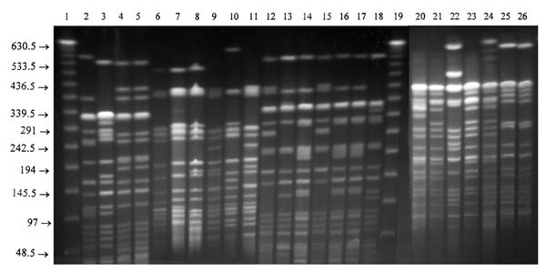 XbaI restriction endonuclease fragment patterns of representative Salmonella Typhi isolates from various countries. Lanes 1 and 19, molecular size standard; Lane 2, B1 from Bangladesh; Lane 3, I1 from India; Lanes 4 and 5, K1 and K2 from Kuwait; Lanes 6, 7, 8, and 9, M1, M2, M3, and M4 from Malaysia; Lanes 10, 11, 12, 13, and 14, Q1, A2, A3, A4, and A5 from Quetta; Lanes 15, 16, 17, and 18, R1, R2, R3, and R4 from Rawalpindi, Pakistan; Lanes 20-24, K1-K5: sensitive S. Typhi from Kenya; and Lanes