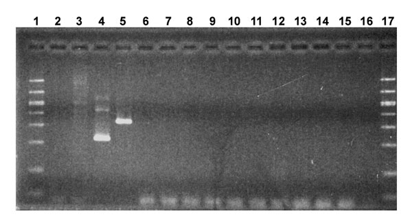 Evaluation of Anthrax Vaccine Adsorbed (AVA) for amplified mycoplasma DNA by gel electrophoresis. Molecular weight markers were run in lanes 1 and 17. Control samples in lanes 2-5 were mycoplasma broth, Hut 78 cell extract, Acholeplasma laidlawii, and Mycoplasma pirum, respectively. The AVA samples were in lanes 6 to 15: Lot FAV048B from Davis Monthan AFB (lane 6), Kansas City MO NRC (lane 7), and Camp Pendleton (lane 8); Lot FAV047 from Fort Detrick (lanes 9 and 11) and Pearl Harbor NMC (lane 10); Lot FAV031 from Fort Worth Base Naval Clinic (lane 12) and the Pentagon Clinic (lane 13); and Lot FAV008 from Davis Monthan AFB (lane 14) and McEntire ANG Station (lane 15). Lane 16 contained water. Bands seen below 100 base pairs are primer multimers.