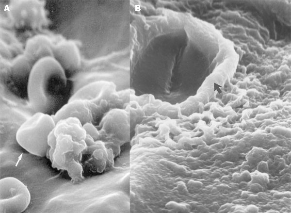 A. Scanning electron microscopy shows the presence of leukocytes and red blood cells on the tip of the ventriculo-peritoneal mass, within which coccoid cells can be visualized. The enclosing matrix material has condensed by dehydration, but the outline of the 4- to 6-µm coccoid cells (arrow), similar to those of C. immitis, can be resolved within the mass (x4,000). B. Scanning electron microscopy of the surface of the ventriculo-peritoneal shunt, showing complete colonization of the surface by a matrix-enclosed biofilm formed by the cells of C. immitis. Within the dehydration-condensed matrix of this biofilm, a hyphal element (arrow) and coccoid cells (4-6 µm) of the pathogen can be discerned (x5,000).