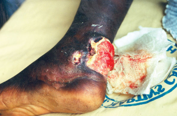 Buruli ulcer on left ankle.