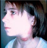 Thumbnail of Girl with ulcerating lymphadenitis colli due to tularemia, Kosovo, April 2000.