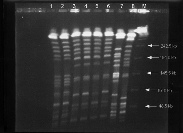 Pulsed-field gel electrophoresis profiles of XbaI-digested genomic DNAs from eight Klebsiella pneumoniae isolates. Lanes 1 and 2, profiles for isolates A1 and A2 (from patient A); lines 3 to 6, profiles for isolates B1 to B4 (from patient B), respectively; and lanes 7 and 8, isolates of K. pneumoniae from two other patients used as control strains. Lane M, bacteriophage lamdba DNA concatemers (GibcoBRL, Gaithersburg, MD)
