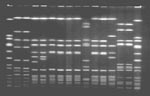 Thumbnail of Pulsed-field gel electrophoresis profiles of Sma I-digested chromosomal DNA. Lanes 1 and 16, NCTC 8325 standard; lane 2 and 3, methicillin-sensitive Staphylococcus aureus (MSSA) nasal isolates from food preparer A; lanes 4 and 5, MSSA nasal isolates from food preparer B; lane 6, methicillin-resistant S. aureus nasal isolate from food preparer C; lane 7, MRSA stool isolate from family member A; lane 8, MRSA stool isolate from family member B; lane 9, MRSA stool isolate from family member C; lanes 10 and 11, MSSA follow-up isolates from family member C; lane 12, MRSA isolate from slaw; lanes 13, 14, and 15, MSSA isolates from barbequed pork.