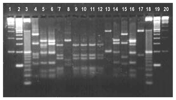 Restriction profiles obtained after digestion of polymerase chain reaction products from the ITS1 locus with Mse I. lanes 1- 3-, 100-, 50-, and 10-bp ladder molecular weight markers; lanes 4 and 15, bovine genotype 2 isolates; lanes 5, 6, 14, and 16, human genotype 1 isolates including DE340 (lane 14); lanes 7 and 9–12, cervine genotype isolates including MH205 (lane 7), TK320 (lane 10), and DE302 (lane 11); lane 8, Cryptosporidium meleagridis isolate CS33; lanes 13 and 17, other novel genotype isolates such as VF383 (lane 13) and TK348 (lane 17)