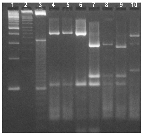 Restriction profiles obtained after digestion of polymerase chain reaction products from the Cryptosporidium oocyst wall protein locus with Rsa I. Lanes 1- 3-, 100-, 50-, and 10-bp ladder molecular weight markers; lanes 4 and 6, bovine genotype 2 isolates; lanes 7 and 8, human genotype 1 isolates; lane 9, cervine genotype isolate MH205; and lane 10, C. meleagridis isolate CS33