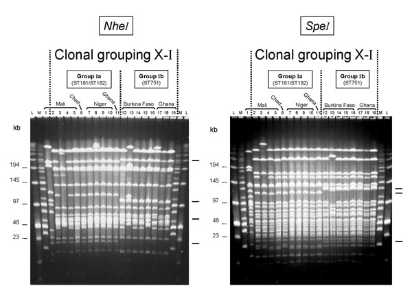 Two groups of pulsed-field gel electrophoresis patterns among NheI- and SpeI-digested chromosomal DNA from selected serogroup X Neisseria meningitidis strains isolated in Africa. Lane: strain: 1: D93 (ST188); 2: 1970; 3: 3187; 4: 3529; 5: D5; 6: LNP13407; 7: LNP14964; 8: LNP15040; 9: 97013; 10: 97014; 11: Z9413; 12: LNP14297; 13: LNP15061; 14: BF2/97; 15: BF5/97; 16: BF1/98; 17: Z7091; 18: Z8336; 19: Z9291. Molecular weight markers were loaded in the flanking lanes as indicated (L: low-range marker; M: midrange marker); their molecular weights are indicated at the left. Characteristic band differences are indicated on the right.