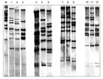 Thumbnail of Twelve BstEII ribotypes identified in 47 Corynebacterium diphtheriae isolates collected in the Russian Federation between 1957 and 1987. The figure is composed of ribotype gels exemplifying the different patterns observed in the strain collection. Lane M, molecular weight marker; lane 1, ribotype M11e; lane 2, M11f; lane 3, M13a; lane 4, M7a; lane 5, unique; lane 6, G4; lane 7, unique; lane 8, M11g; lane 9, M3; lane 10, M1b; lane 11, M6; lane 12, M13b.