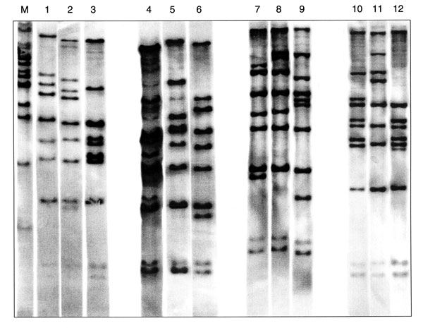 Twelve BstEII ribotypes identified in 47 Corynebacterium diphtheriae isolates collected in the Russian Federation between 1957 and 1987. The figure is composed of ribotype gels exemplifying the different patterns observed in the strain collection. Lane M, molecular weight marker; lane 1, ribotype M11e; lane 2, M11f; lane 3, M13a; lane 4, M7a; lane 5, unique; lane 6, G4; lane 7, unique; lane 8, M11g; lane 9, M3; lane 10, M1b; lane 11, M6; lane 12, M13b.
