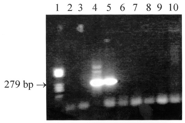 Results of the nested polymerase chain reaction (PCR) assay performed on the serum specimens from both patients and their dogs. Lane 1: standard DNA size marker V (Boehringer, Mannheim, Germany); lanes 2 and 3: serum #1 from man; lanes 4 and 5: serum #1 from woman; lanes 6 and 7: serum from dog #1; lanes 8 and 9: serum from dog #2; lane #10: negative control; lanes 2, 4, 6, and 8: pure DNA; and lanes 3, 5, 7, and 9: DNA diluted 1:10 in deionized water.