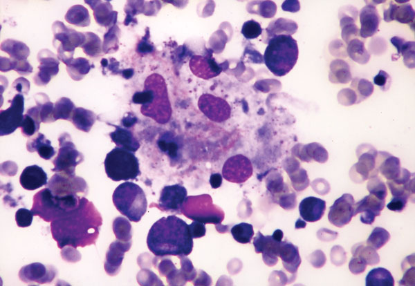 Bone marrow aspirate showing phagocytosis of neutrophil, nucleated erythrocyte, and platelets by benign histiocytes (Wright stain, x400).