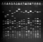 Thumbnail of Pulsed-field gel electrophoresis (PFGE) profiles of the 14 most common methicillin-resistant Staphylococcus aureus (MRSA) strain types identified, Finland, 1997–1999. Lanes 1, 9, 17: S. aureus NCTC 8325 (molecular weight marker); lanes 2–4: strain types associated with community acquisition (Mikkeli clone, E22, E31); lane 5: E1; lane 6: E24; lane 7: E5; lane 8: Kemi clone; lane 10: E27; lane 11: UK EMRSA-15; lane 12: E19; lane 13: Pori clone; lane 14: E20; lane 15: Iberian clone; and lane 16: O25.