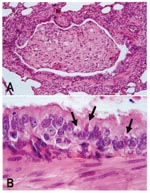 Thumbnail of Lung lesions in an African wild dog with canine distemper. Hematoxylin and eosin staining. A. Bronchiole occluded by inflammatory cells and cell debris. B. Detail of A, showing multiple eosinophilic intracytoplasmic viral inclusions (arrows) in bronchiolar epithelium.