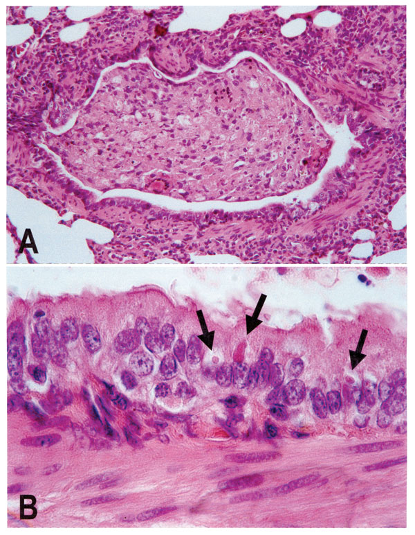 Lung lesions in an African wild dog with canine distemper. Hematoxylin and eosin staining. A. Bronchiole occluded by inflammatory cells and cell debris. B. Detail of A, showing multiple eosinophilic intracytoplasmic viral inclusions (arrows) in bronchiolar epithelium.