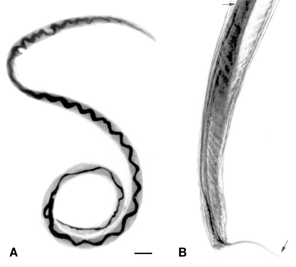 Adult Angiostrongylus cantonensis recovered from rat lungs. A. Adult female worm with characteristic barber-pole appearance (anterior end of worm is to the top). Scale bar = 1 mm. B. Tail of adult male, showing copulatory bursa and long spicules (arrows). Scale bar = 85 μm.