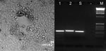 Thumbnail of Left: cytopathic effect in Vero cells consisting of a plaque and rounding of the cells after homogenized altered mucosal membrane of the marmoset was added to the cell culture. Right: type-specific polymerase chain reaction (PCR). Lanes 1 and 2 show fragments of 229-bp DNA amplified from Human herpesvirus 1 (HHV-1) and 241 bp from HHV-2 control strains, respectively. Lane S shows an HHV-1–specific PCR product amplified from an oral mucosa specimen of the marmoset; no product was obtained from supernatants of uninfected cell culture (lane -). Lane M, 1 kb DNA Ladder (GIBCO/BRL,Grand Island, NY).