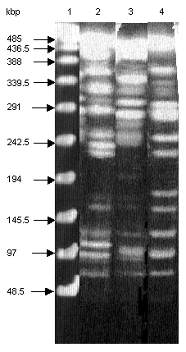 Macrorestriction analysis by pulsed-field gel electrophoresis of genomic DNAs cut by XbaI of S. enterica serotype Typhimurium DT 104 strain BN9181 (lane 2), serotype Agona strain 959SA97 (lane 3), and the serotype Paratyphi B strain (lane 4). Lane 1: DNA ladder.