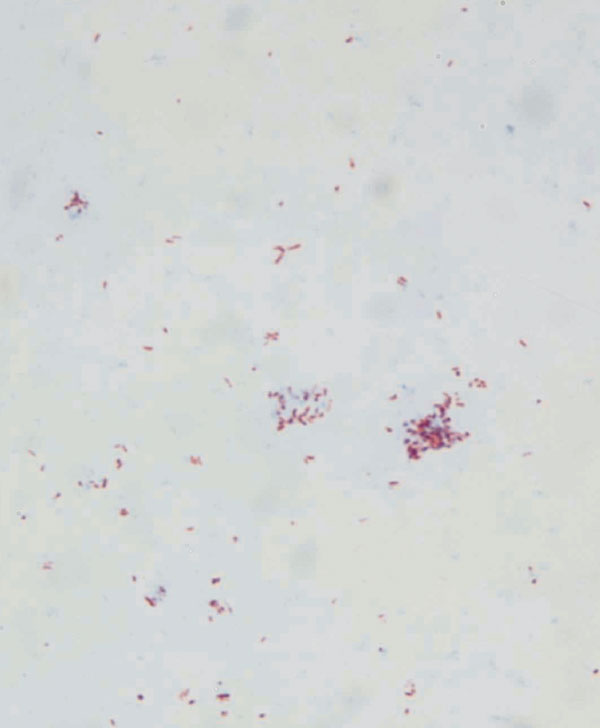 Ziehl-Neelsen–stained micrograph of Mycobacterium avium subsp. paratuberculosis colonies growing on mycobactin-supplemented Middlebrook agar.