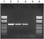 Thumbnail of Agarose gel electrophoresis of amplified IS900 fragments. Lanes 1 and 6: molecular weight marker (2176, 1766, 1230, 1033, 653, 517, 453, 394, 298, 234–220, 154 bp); lanes 2 and 3: two patient samples; lane 4: positive control (Mycobacterium avium subsp. paratuberculosis type strain); and lane 5: negative control (Mycobacterium avium strain).