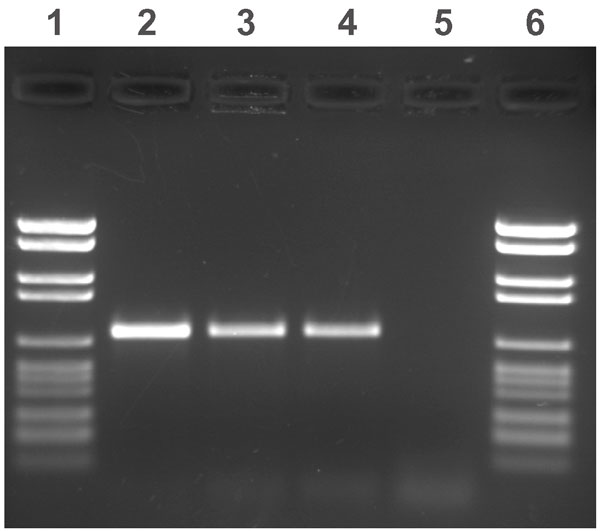 Agarose gel electrophoresis of amplified IS900 fragments. Lanes 1 and 6: molecular weight marker (2176, 1766, 1230, 1033, 653, 517, 453, 394, 298, 234–220, 154 bp); lanes 2 and 3: two patient samples; lane 4: positive control (Mycobacterium avium subsp. paratuberculosis type strain); and lane 5: negative control (Mycobacterium avium strain).