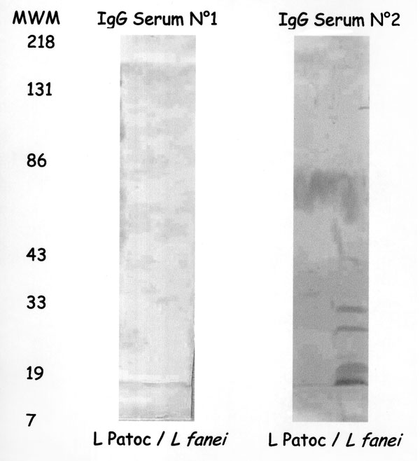 Western immunoblot of the patient's acute- (No. 1) and convalescent-phase (No. 2) sera on Leptospira serovar patoc and L. fainei. MWM indicates molecular weight markers.