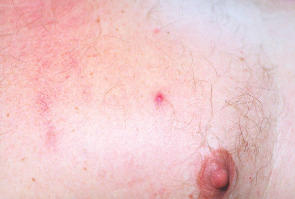 Closer view of papulovesicular lesions on patient with rickettsialpox.