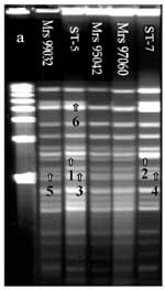 Thumbnail of Pulsed-field gel electrophoresis analysis of chromosomal DNA (ethidium bromide staining) of 104 strains isolated in Africa. DNA macrorestriction fragments were generated with BglII; 103 out of 104 strains showed closely related profiles. ST-5 pattern was the first pattern found in Africa and the most frequently isolated from 1988 to 1996. The second pattern was the ST-7 pattern, attributable to strains isolated more recently in Algeria, Cameroon, Sudan, Chad, and Niger. ST-7 pattern