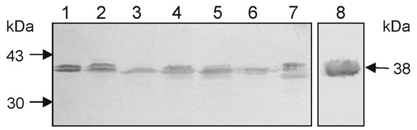 Identification of the 38-kDa flagellin protein SMFliC in clinical isolates of Stenotrophomonas maltophilia. Lane 1, SMDP14; lane 2, SMDP275; lane 3, SMHC176; lane 4, SMHC181; lane 5, SMDP315; lane 6, SMDP314; and lane 7, SMHC179. Lane 8, the purified SMFliC, was used as positive control. The immunoblot shows the presence of the 38-kDa flagellin protein in all the isolates. Doublet bands were seen in some of the isolates. Molecular weight standards and the 38-kDa flagellin protein are indicated by arrows.