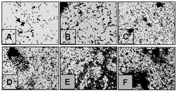 Kinetics of Stenotrophomonas maltophilia adherence to plastic. (A) As early as 30 min, individual bacteria have attached to the plastic surface and formed small clumps (arrows). (B–D) As incubation time proceeds for 1 (B), 2 (C), and 4 (D) h, the number of attached bacteria increases throughout the abiotic surface. (E) At 6 h, the bacterial monolayers progress into three-dimensional microcolonies (arrows). (F) After 18 h, the microcolonies have formed true bacterial communities. No obvious differences were noted beyond this incubation period. Magnification 400x.