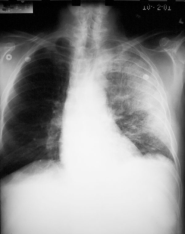 Chest X-ray (Case 2) showing diffuse consolidation consistent with pneumonia throughout the left lung. There is no evidence of mediastinal widening.