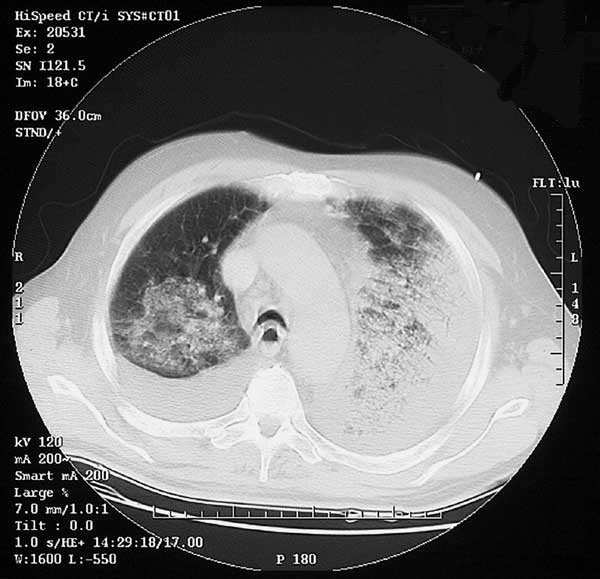 Computed tomography of chest (Case 2) showing bilateral pulmonary consolidation and pleural effusions.