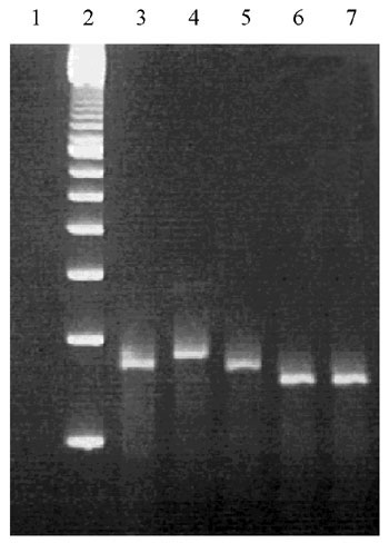 Ethidium bromide stained 3% molecular screening agarose gel containing Bordetella pertussis DNA amplified with primers QH8F´ and QH2R. Lanes: 1, negative control including all reagents but no template DNA; 2, 100-bp ladder; 3, B. pertussis strain 1772 of type prn1 (260 bp); 4, Bordetella pertussis clinical isolate of type prn2 (275 bp); 5, B. pertussis clinical isolate of type prn3 (260 bp); 6, B. pertussis clinical isolate of type prn4 (245 bp); and 7, B. pertussis type prn5 (245 bp).