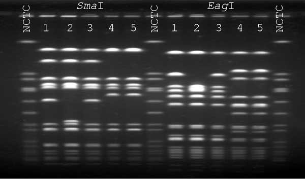 Pulsed-field gel electrophoresis profiles of SmaI- and EagI-Digested DNA. NCTC, National Collection of Type Cultures 8325 control. Lane 1, patient's oxacillin-resistant vancomycin-intermediate Staphylococcus aureus (VISA); lane 2, patient's oxacillin-susceptible VISA; lane 3, patient's oxacillin-resistant S. aureus (ORSA, vancomycin MIC = 2 µg/mL) from anterior nares; lanes 4 and 5, isolates of ORSA (vancomycin MIC = 2 µg/mL) from the health-care worker's anterior nares.