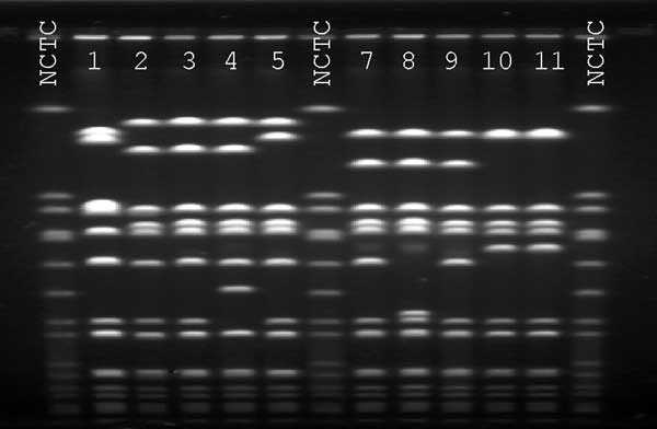 Pulsed-field gel electrophoresis profiles of SmaI digested DNA. NCTC, National Collection of Type Cultures 8325 control. Lane 1, vancomycin-intermediate Staphylococcus aureus (VISA) isolate from Japan, otherwise designated Mu50; lane 2, VISA isolate from Michigan (7); lane 3, VISA isolate from New Jersey (7); Lane 4, VISA isolate from New York (1); lane 5, VISA isolate from Illinois (3); lane 7, patient's oxacillin-resistant VISA; lane 8, patient's oxacillin-susceptible VISA; lane 9 patient's ox